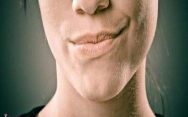 موهای زائد خانم ها و دلایل احتمالی رشد موهای زائد صورت در خانم ها
