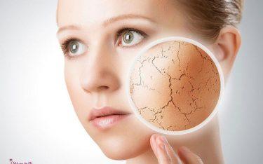 پوست خشک_ چگونه از پوست خشک محافظت کنم؟