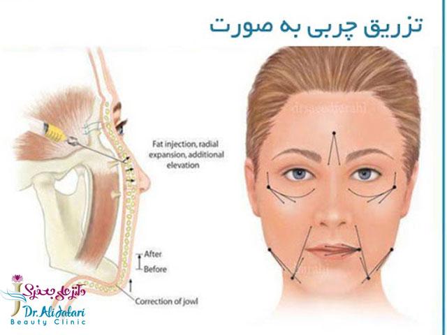 تزریق کردن چربی به صورت، گردن و پشت دست ها