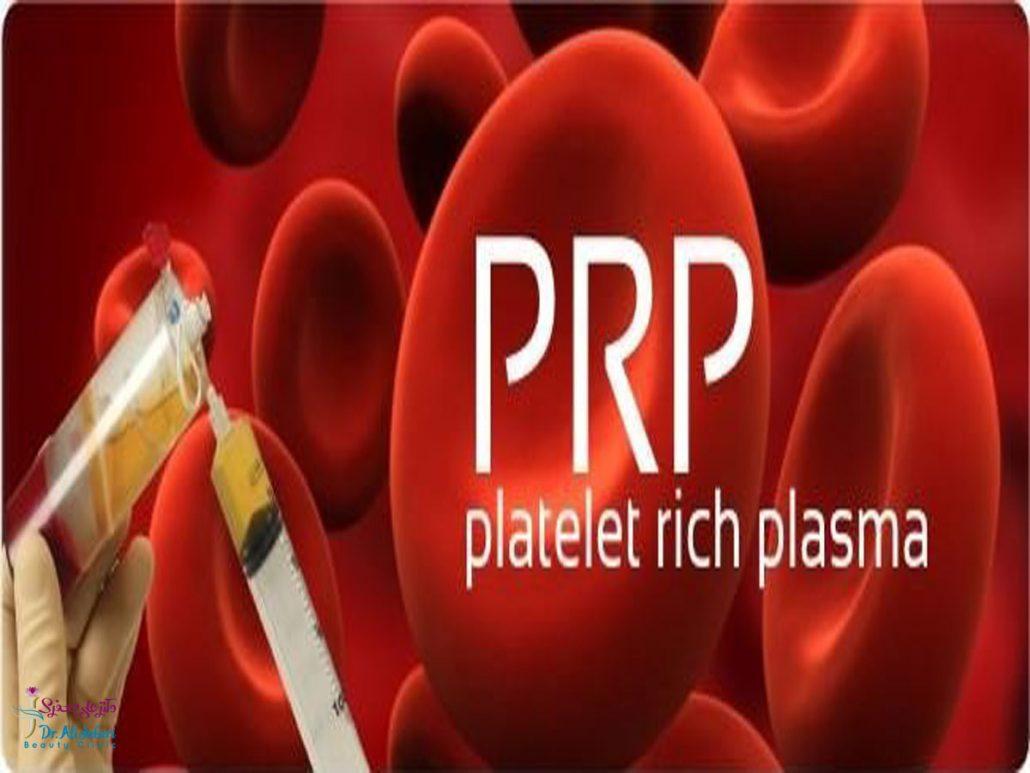 درمان prp چیست؟