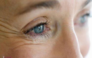 راه های درمان چروک زیر چشم
