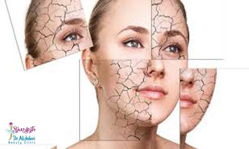 پوست و انواع آن