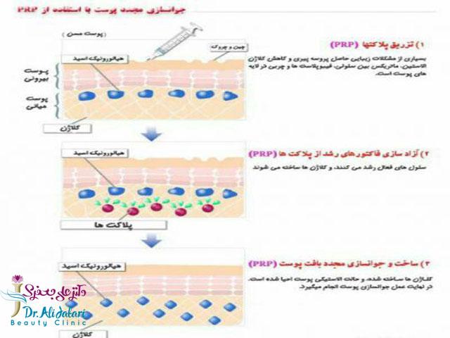 PRP چیست؟کاربردهای PRP و جوانسازی با روش پی آر پی