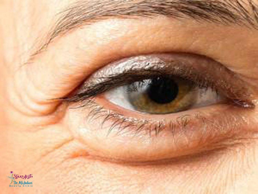 درمان قطعی پف دور چشم با مزوتراپی، پلاسماجت و تزریق پی ار پی