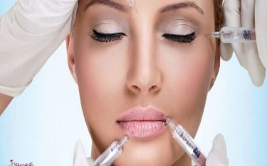 پرکننده های پوستی چیست؟ پرکننده های صورت و لب، مزایا و عوارض