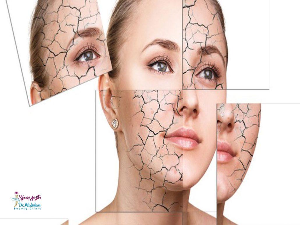 5 راه درمانی برای کسانی که از خشکی پوست دست رنج می برند