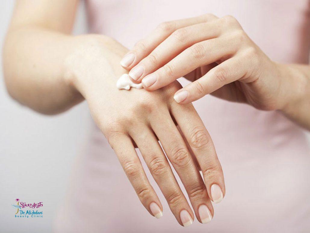 چگونه میتوان خشکی دست ها را درمان نمود و یا از آن پیشگیری نمود؟