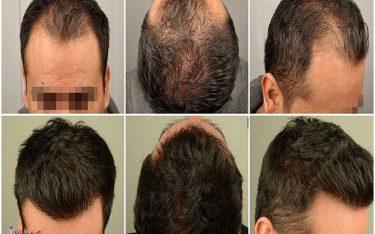 بهترین کلینیک کاشت مو در رشت کجاست؟