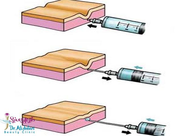 تاثیر تزریق ژل بر پوست