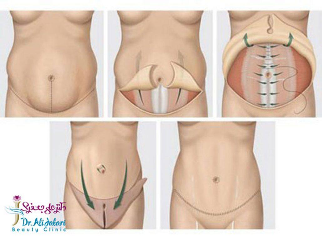 ابدومینوپلاستی چیست؟ جراحی زیبایی شکم