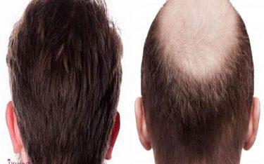 کاشت مو چگونه است؟ انواع روش های کاشت مو در ایران و جهان