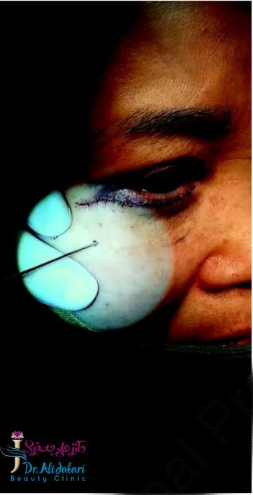 تزریق میکرو چربی زیر چشم