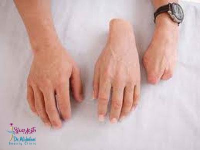 پروتز دست