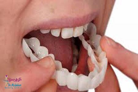 زیبایی دندان ها