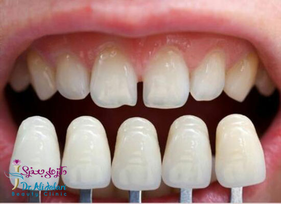لمینت دندان و انواع لمینت ها و کاربرد آن برای زیبایی دندان