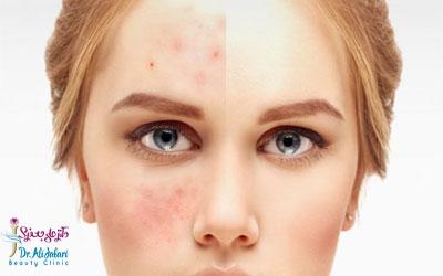 اثرات کرم اسید آزالیک