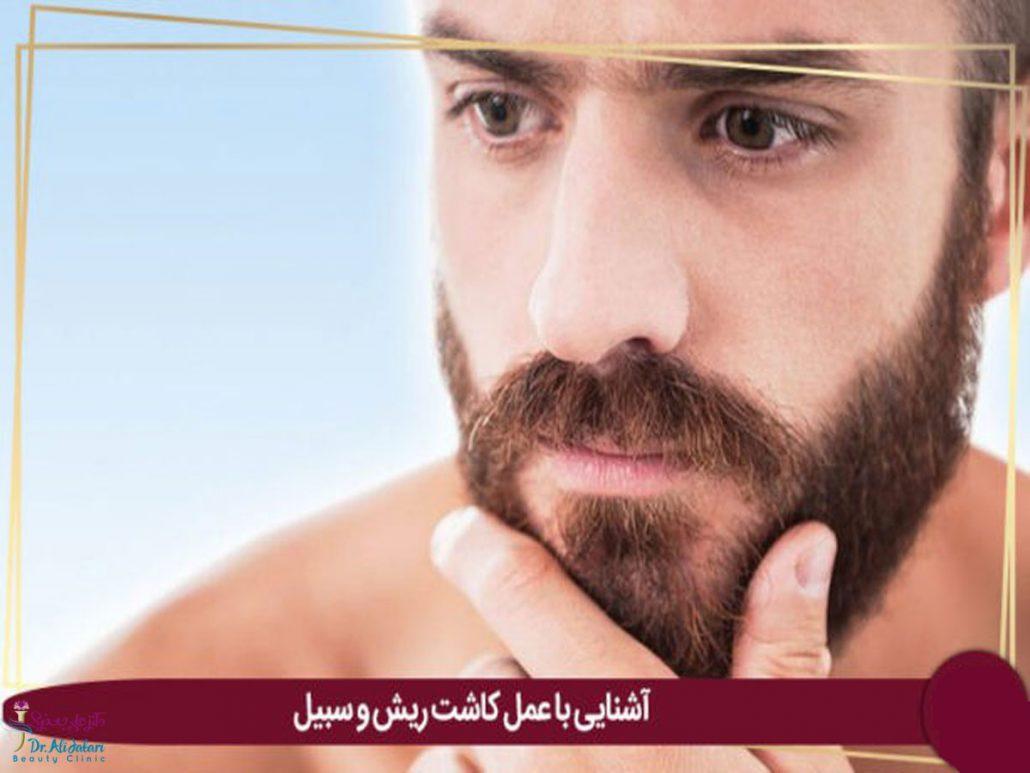 کاشت ریش ؛ روش های انجام کاشت ریش، مزایا و معایب…