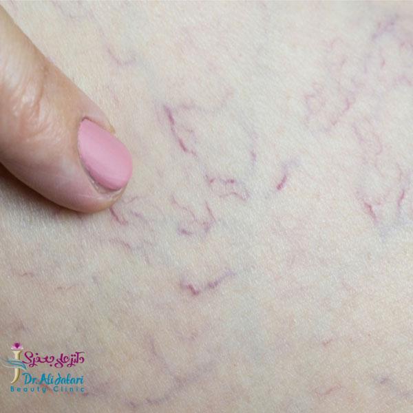 درمان رگ های واریسی با لیزر زئو