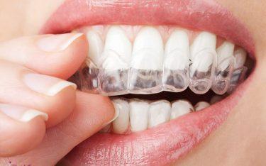 بلیچینگ دندان! انواع بلیچینگ و نحوه انجام آن و مزایا و معایب