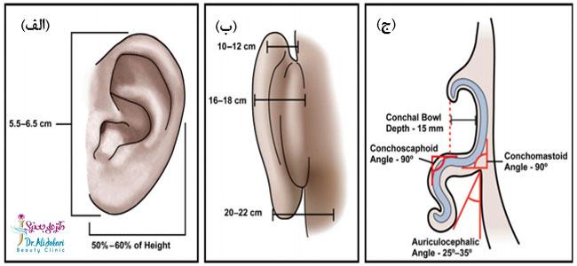 شکل مناسب گوش