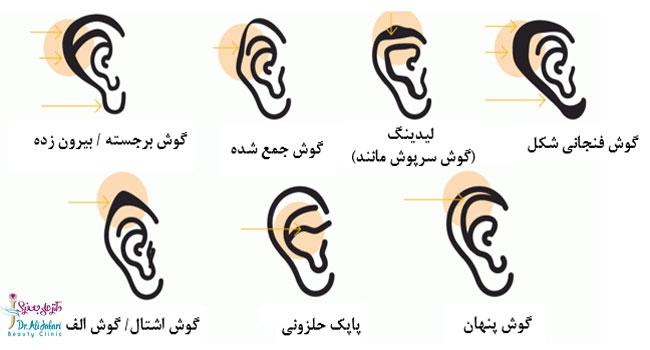 بدشکلی های گوش