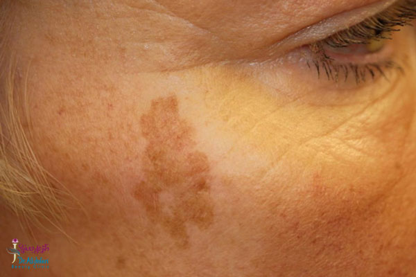 علل ایجاد لکه های پوستی