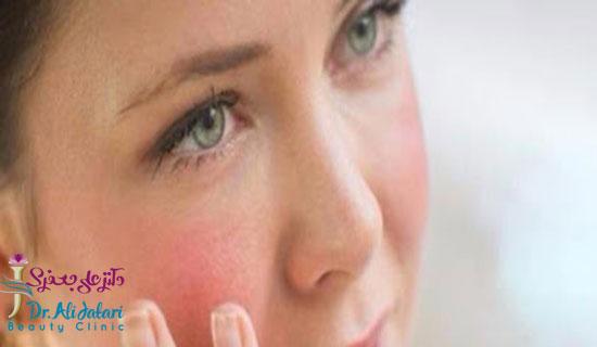 پوست حساس و تغذیه مناسب