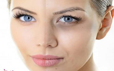تیرگی دور چشم و روش های از بین بردن آن (درمان گودی و سیاهی دور چشم)