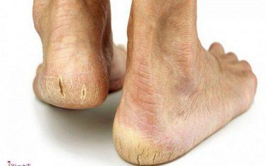 ترک کف پا چیست و چگونه میتوان ترکخوردگی کف پا را درمان کرد؟