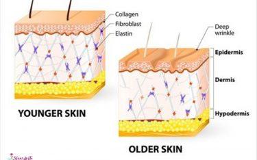 جوانسازی کلاژن با استفاده از لیزر