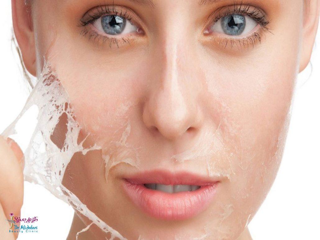 لایه برداری پوست و انواع آن و هر آنچه باید درباره لایه برداری بدانید