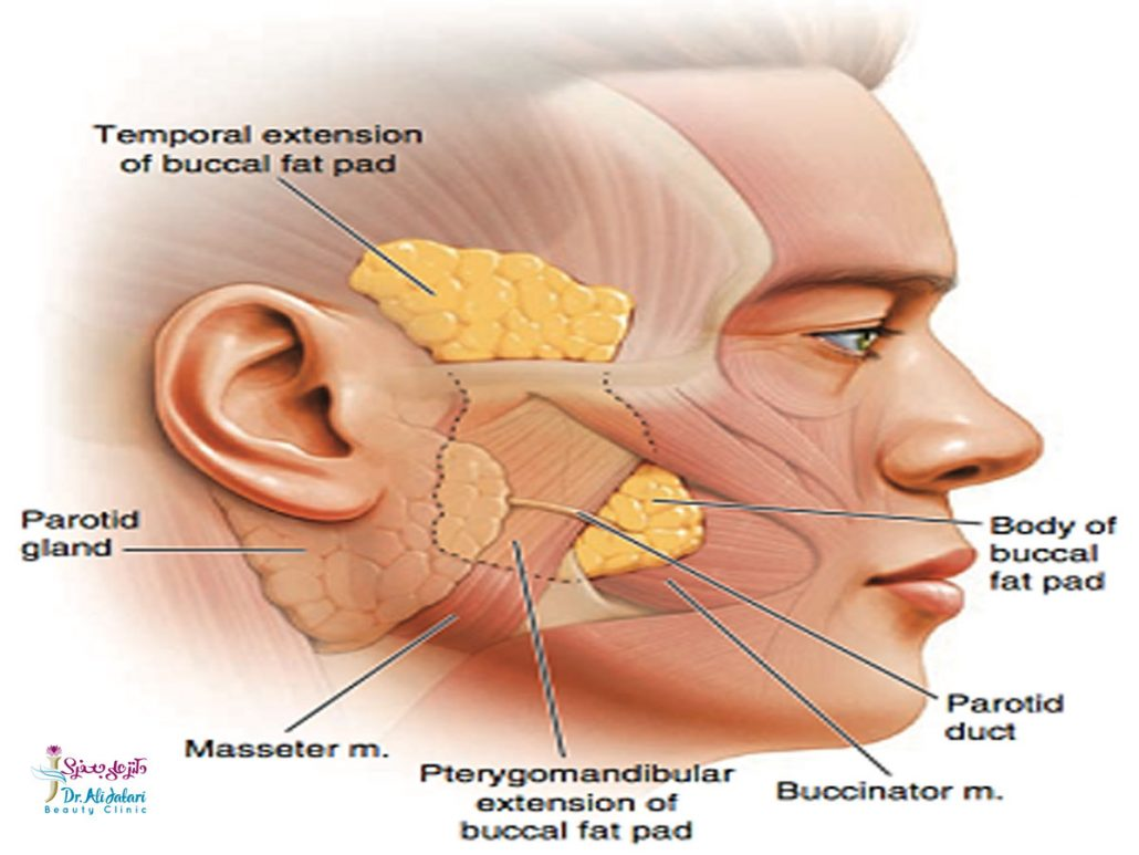 بوکال فت چیست؟ هدف از جراحی بوکال فت چیست؟
