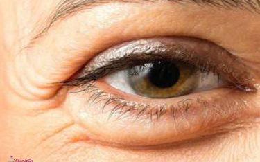 پف دور چشم و درمان قطعی آن با مزوتراپی، پلاسماجت و تزریق پی آر پی