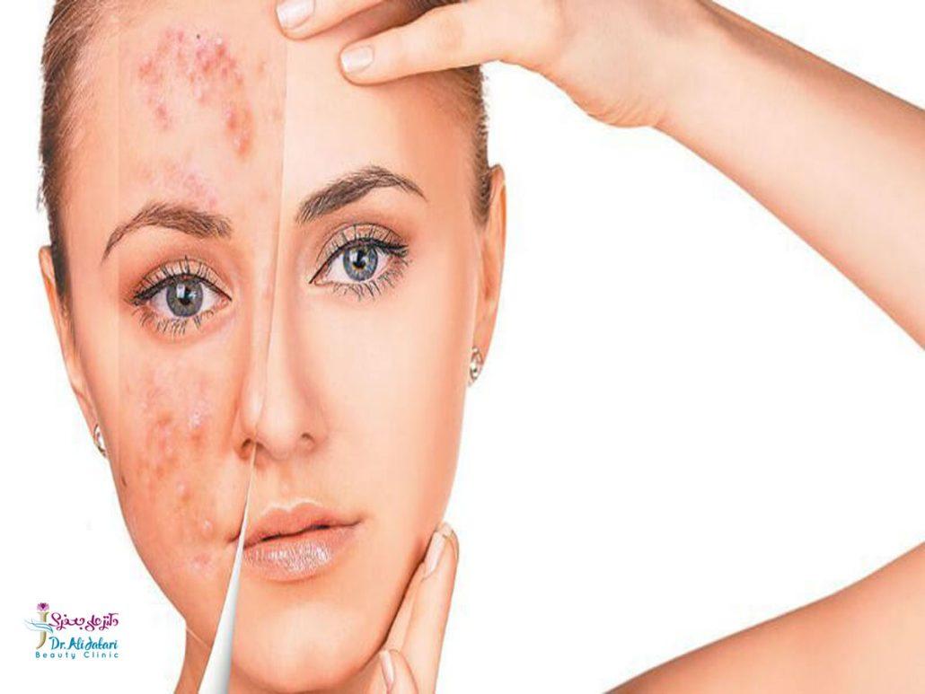 درمان آکنه برای پوست های مختلف