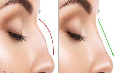 رینوپلاستی چیست؟ جراحی زیبایی بینی!!! فواید و عوارض