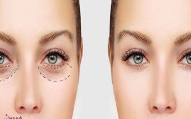 بلفاروپلاستی چیست؟ جراحی پلک بالا و پایین (رفع افتادگی پلک بالا و اصلاح شیار زیر پلک پایین چشم )
