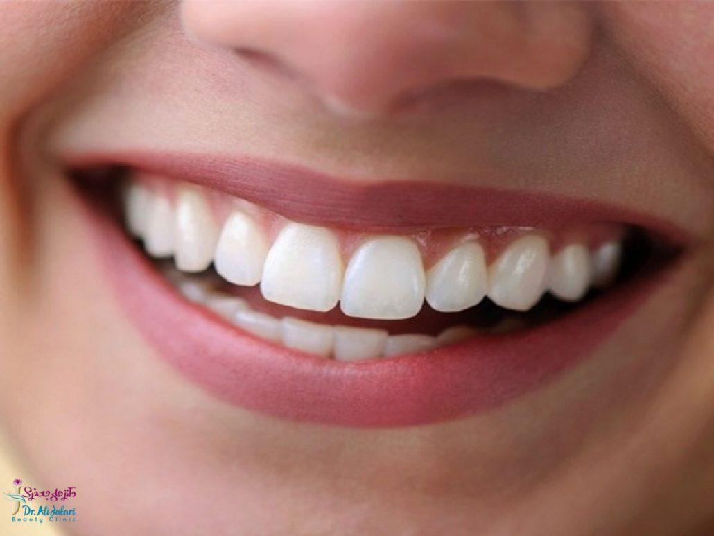 زیبایی دندان – 11 روش زیباسازی دندان ها (ایمپلنت، لمینت، روکش و …)