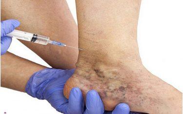 اسکلروتراپی چیست؟اسکلروتراپی راهی برای درمان واریس عروق پا و هیدروسل و…