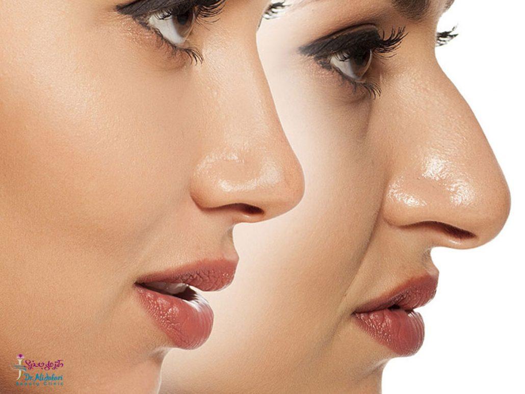 تیپ پلاستی چیست؟ تفاوت تیپ پلاستی و جراحی بینی در چیست؟
