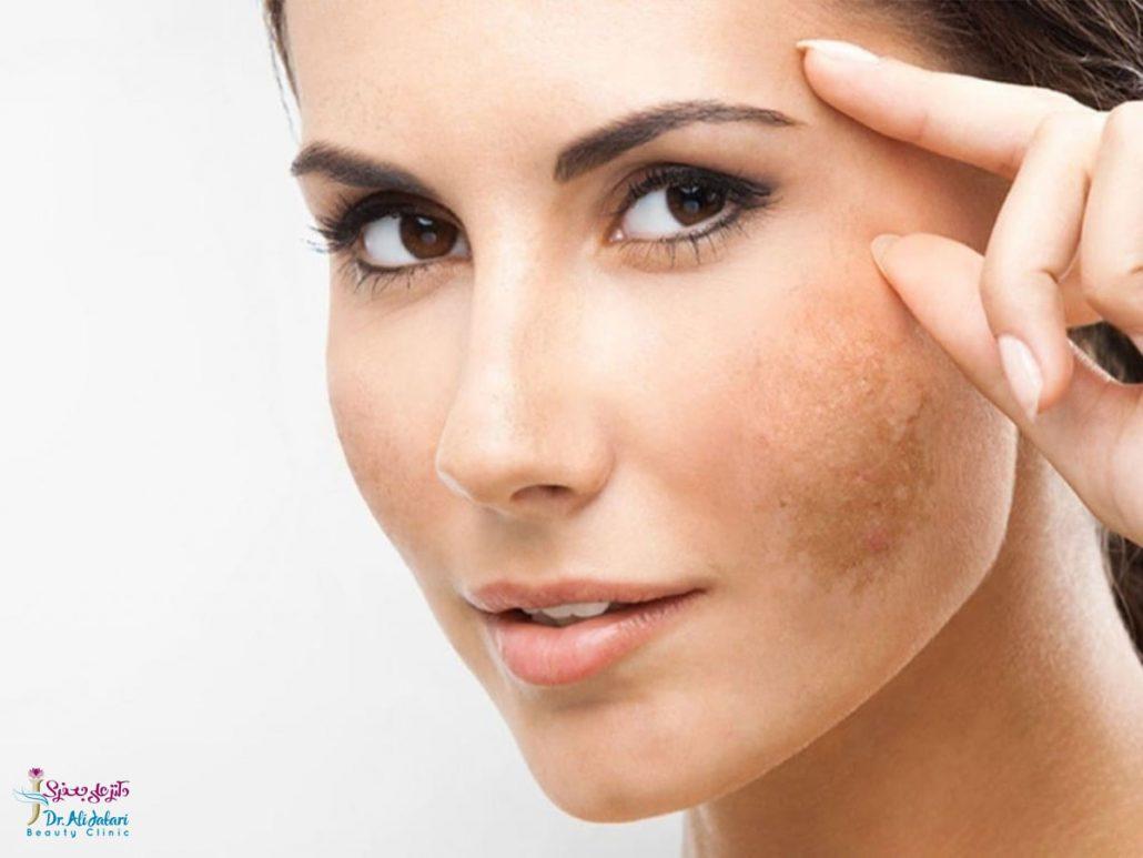 لک ها و تیرگی های پوست (علل ایجاد و روش های درمان لک ها در نواحی مختلف بدن)