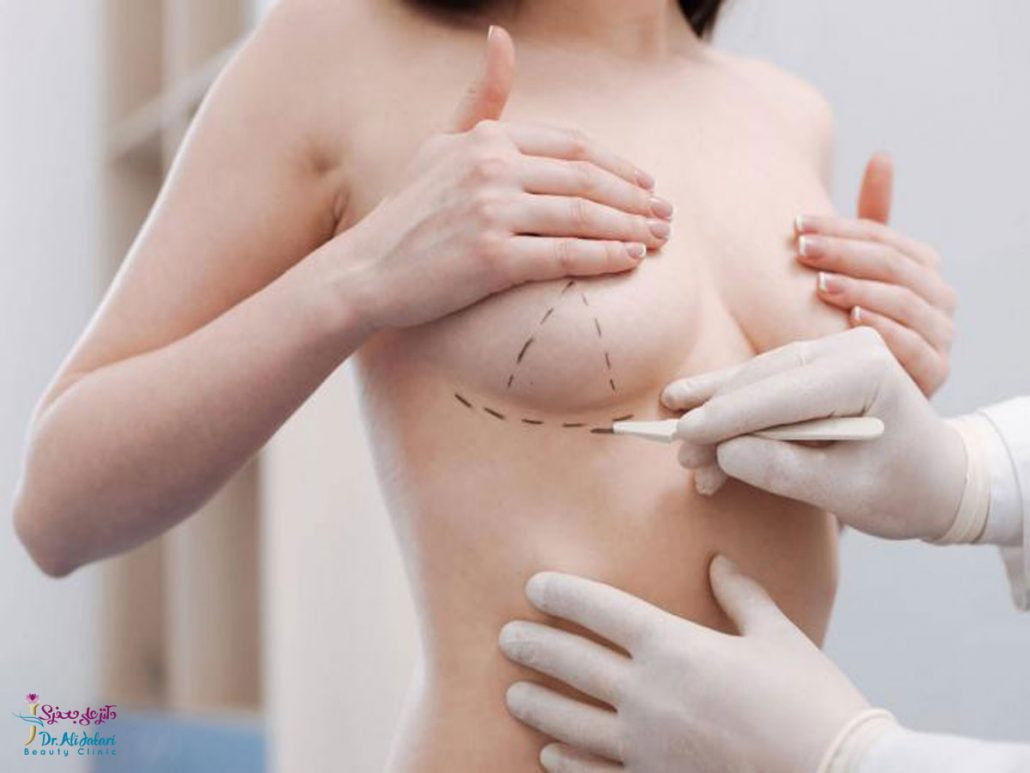 لیفت سینه چگونه انجام می شود؟(علل افتادگی پستان و روش های لیفت آن)